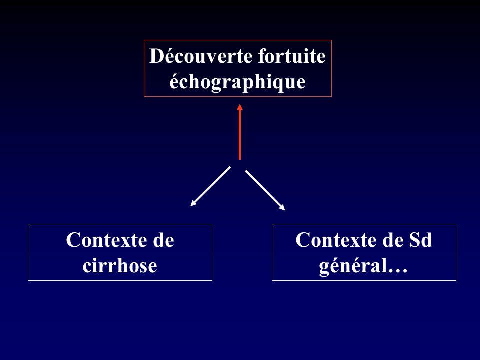 Contexte de Sd général…
