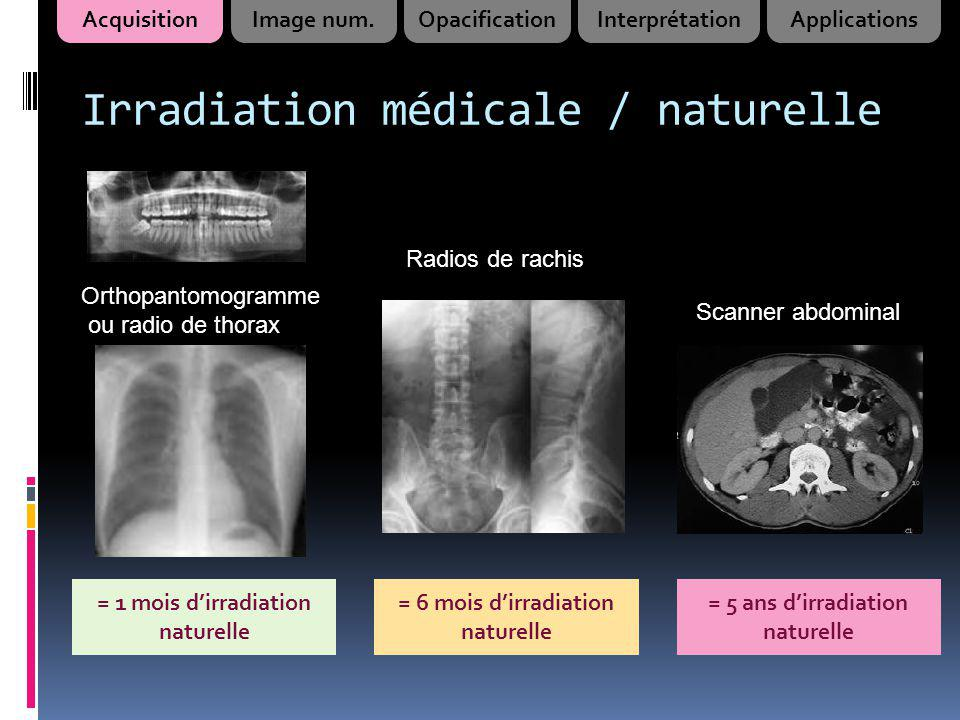 Irradiation médicale / naturelle
