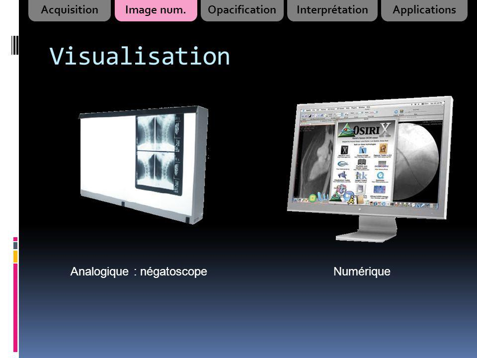 Visualisation Acquisition Image num. Opacification Interprétation