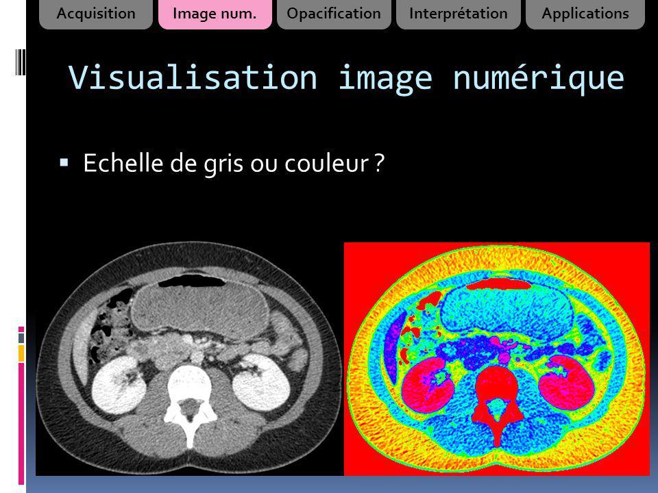 Visualisation image numérique