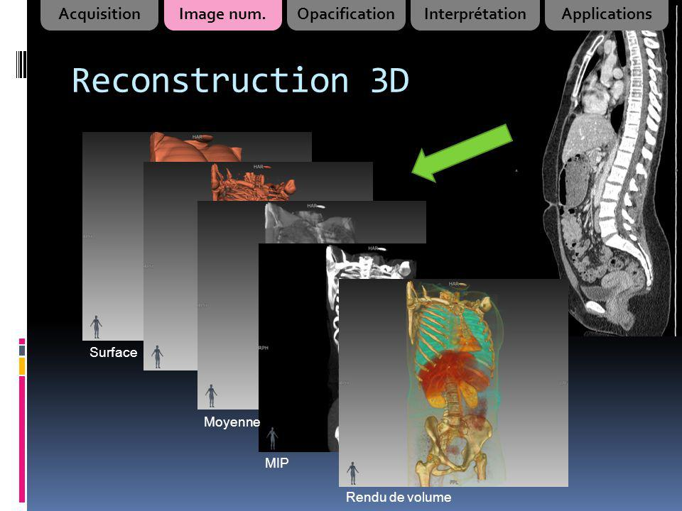 Reconstruction 3D Acquisition Image num. Opacification Interprétation