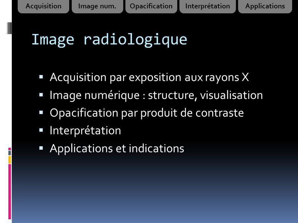 Image radiologique Acquisition par exposition aux rayons X