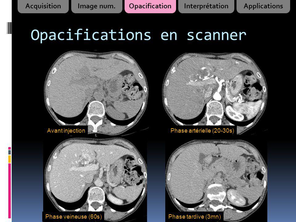 Opacifications en scanner