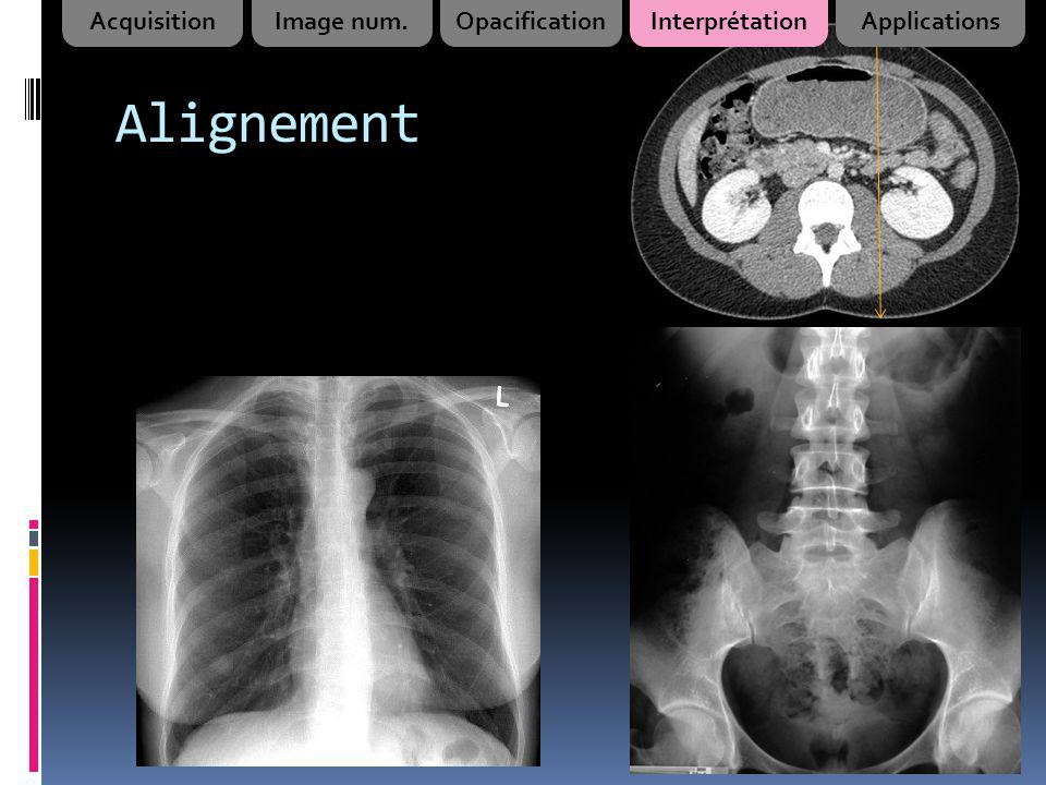 Alignement Acquisition Image num. Opacification Interprétation