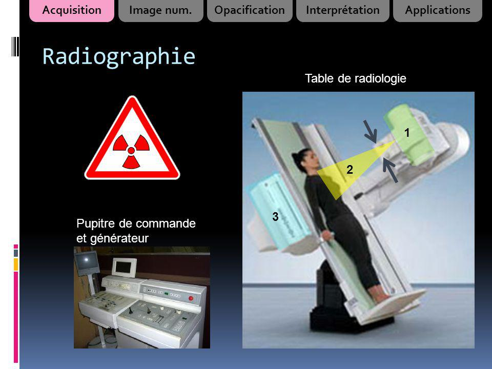 Radiographie Acquisition Image num. Opacification Interprétation