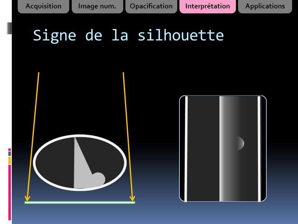 Signe de la silhouette Acquisition Image num. Opacification