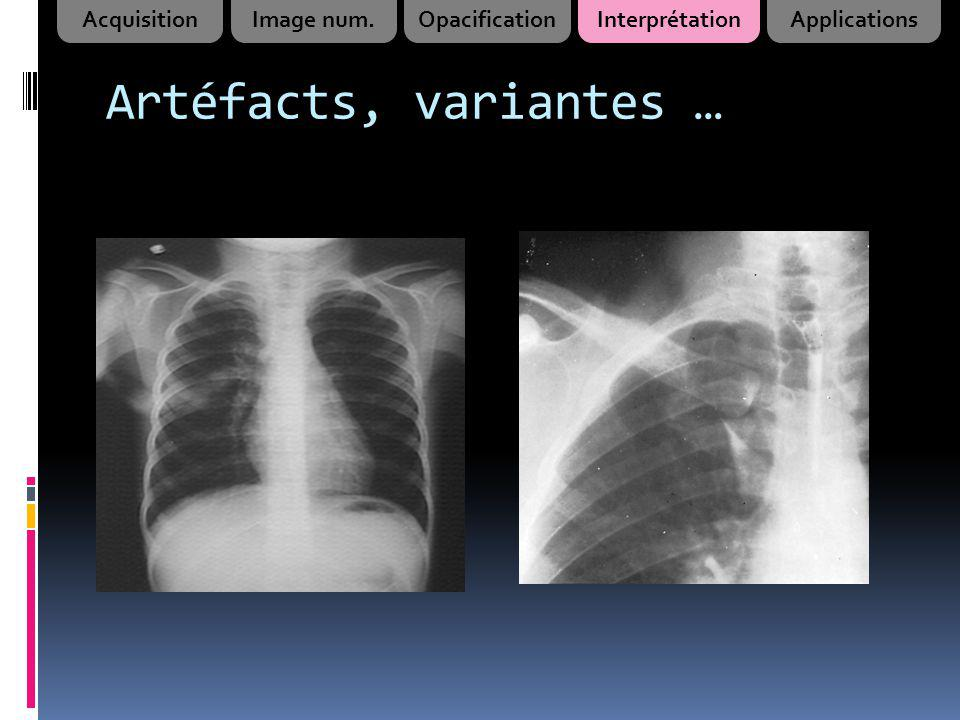 Artéfacts, variantes … Acquisition Image num. Opacification