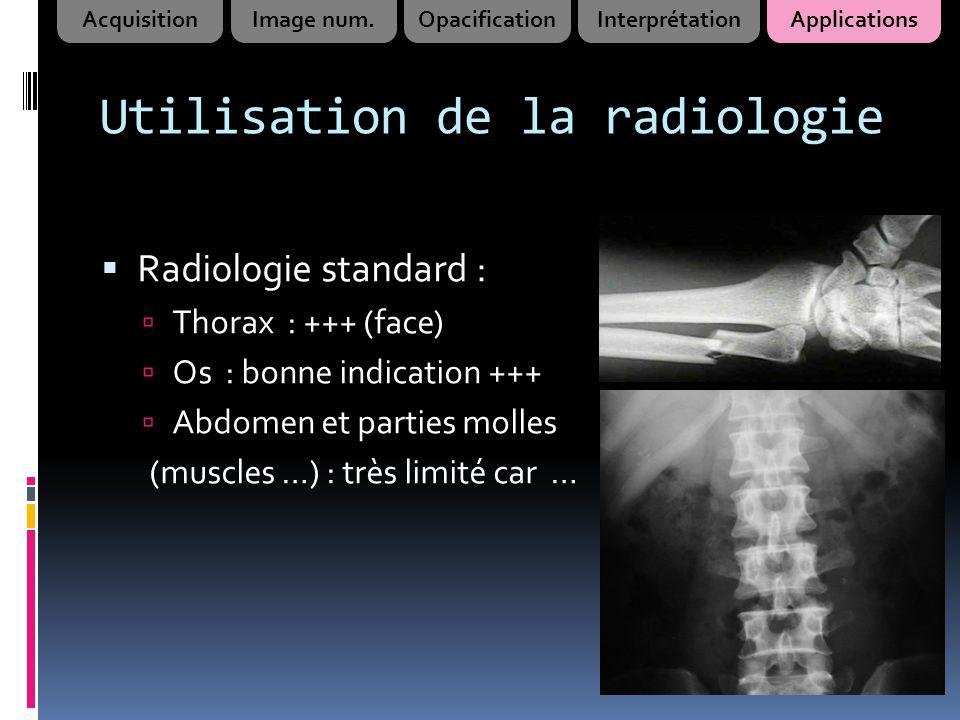 Utilisation de la radiologie