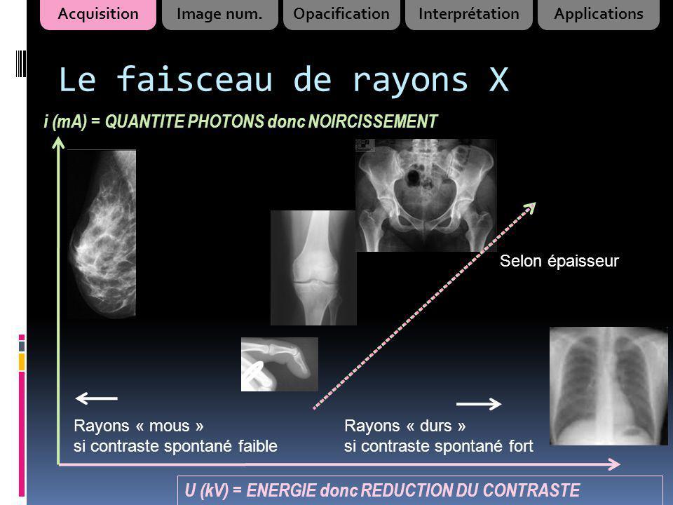 Le faisceau de rayons X i (mA) = QUANTITE PHOTONS donc NOIRCISSEMENT