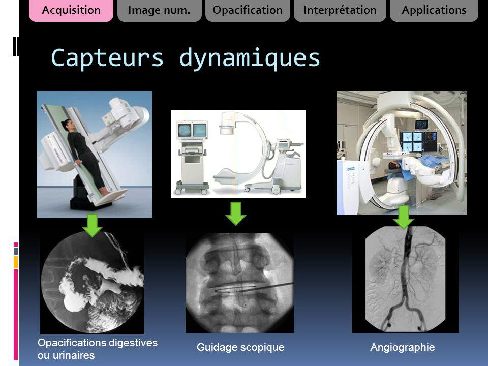Capteurs dynamiques Acquisition Image num. Opacification