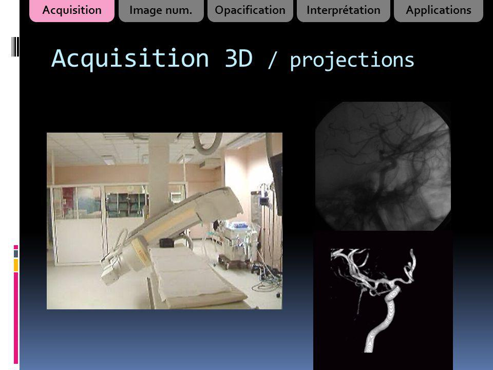 Acquisition 3D / projections