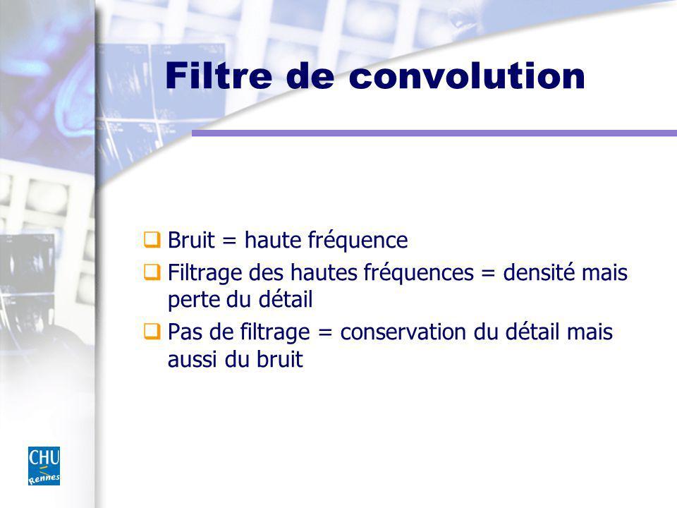 Filtre de convolution Bruit = haute fréquence