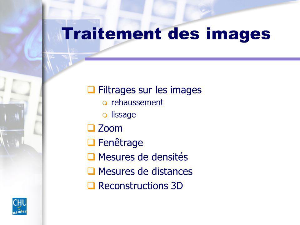 Traitement des images Filtrages sur les images Zoom Fenêtrage