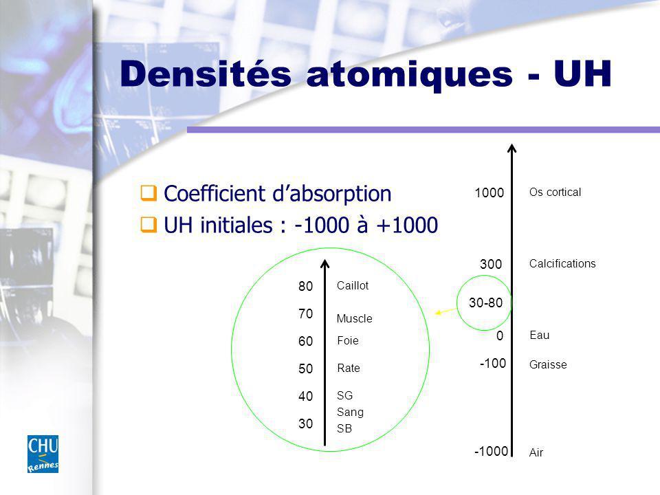 Densités atomiques - UH