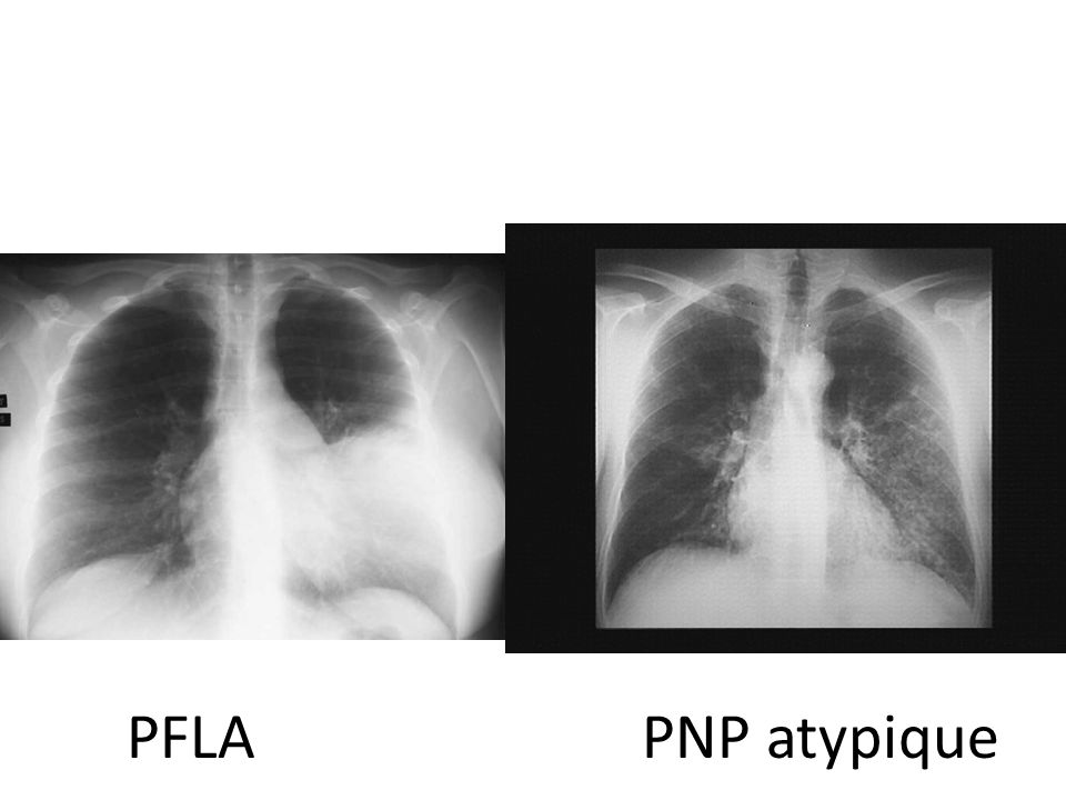 PFLA PNP atypique