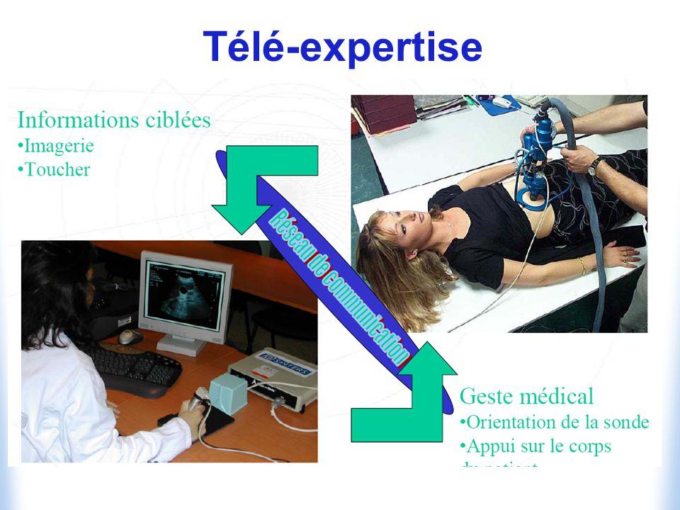 Télé-expertise