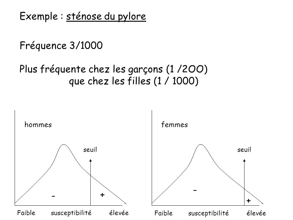 Exemple : sténose du pylore