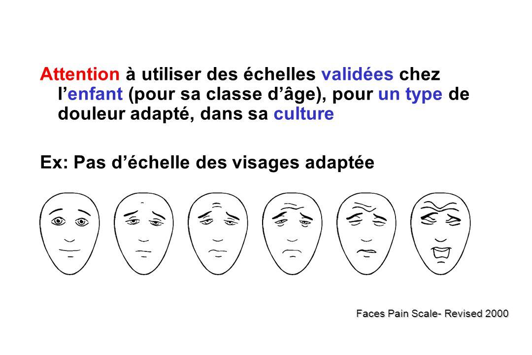 Ex: Pas d'échelle des visages adaptée