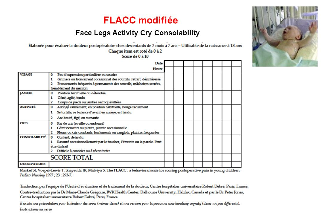 FLACC modifiée Face Legs Activity Cry Consolability