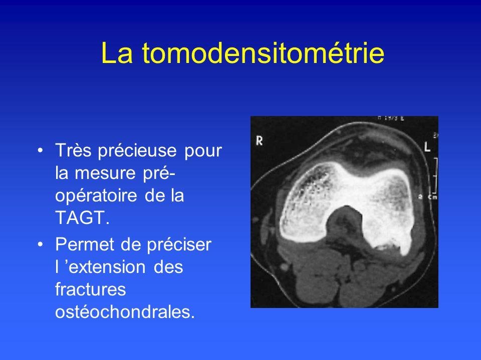 La tomodensitométrie Très précieuse pour la mesure pré-opératoire de la TAGT.