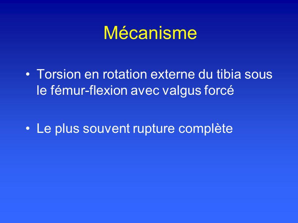 Mécanisme Torsion en rotation externe du tibia sous le fémur-flexion avec valgus forcé.