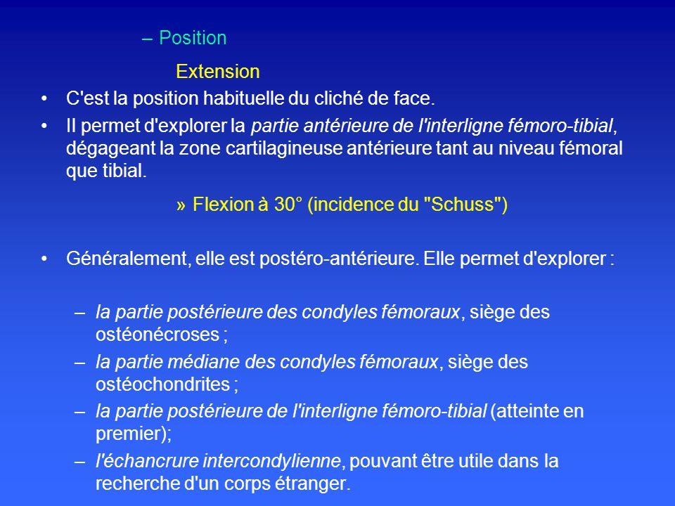 Position Extension. C est la position habituelle du cliché de face.