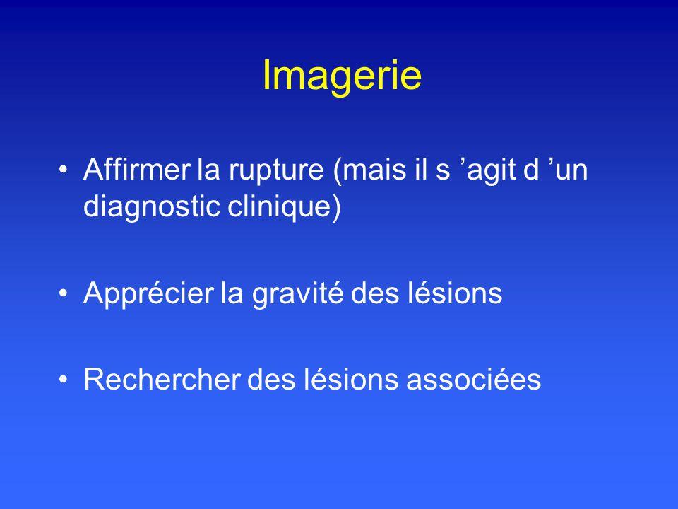 Imagerie Affirmer la rupture (mais il s 'agit d 'un diagnostic clinique) Apprécier la gravité des lésions.