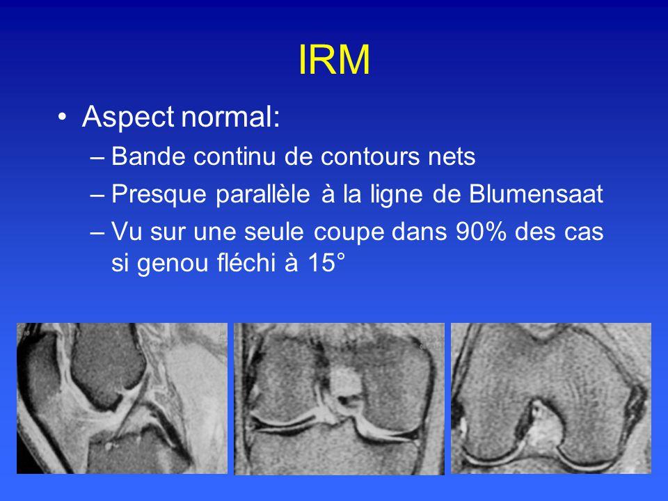 IRM Aspect normal: Bande continu de contours nets