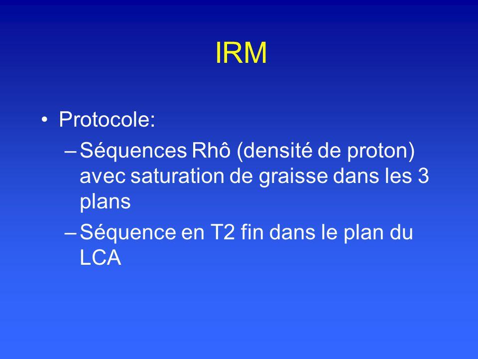 IRM Protocole: Séquences Rhô (densité de proton) avec saturation de graisse dans les 3 plans.