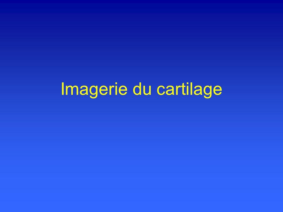 Imagerie du cartilage