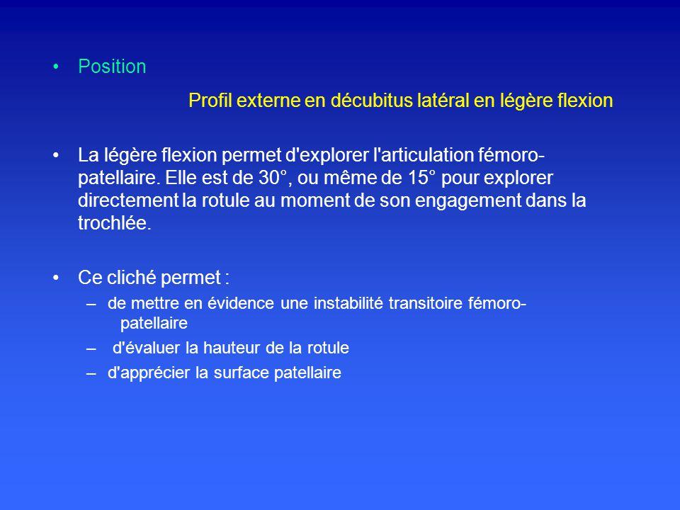 Profil externe en décubitus latéral en légère flexion