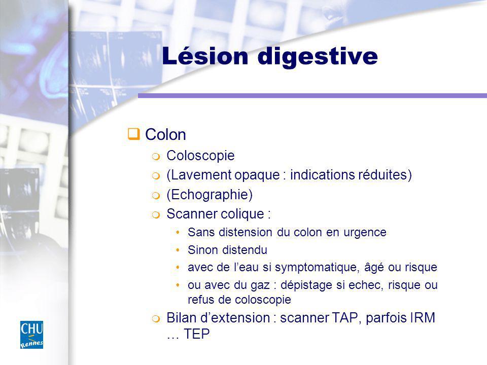 Lésion digestive Colon Coloscopie