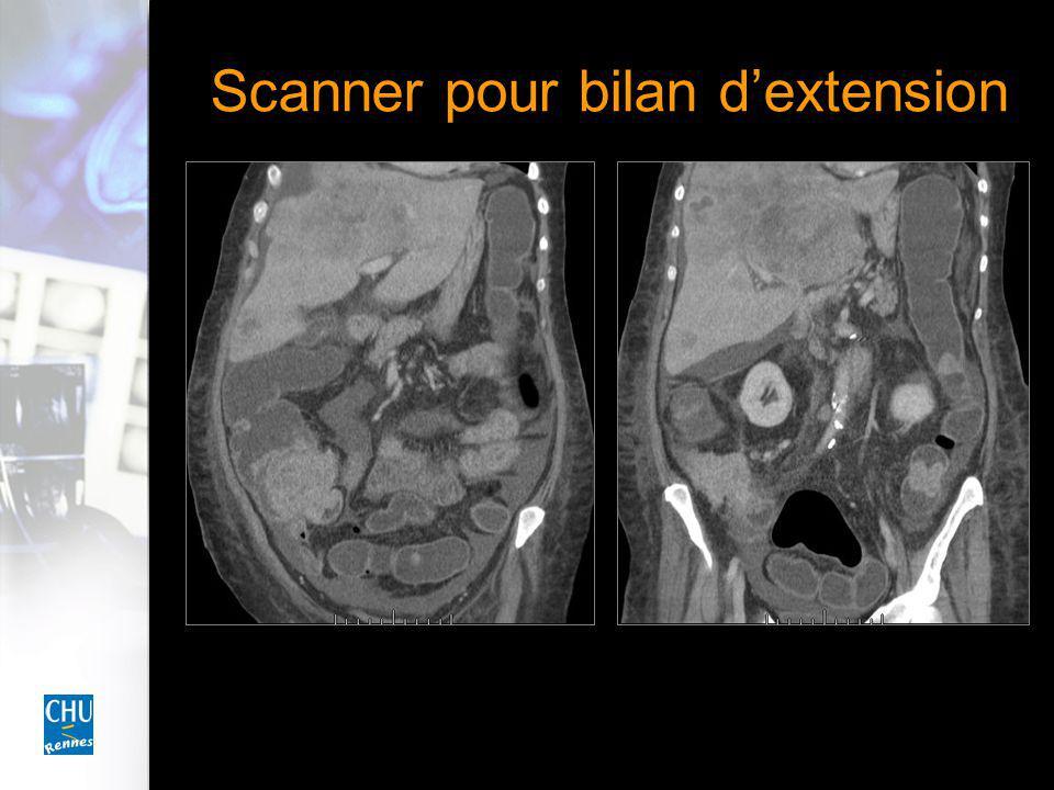 Scanner pour bilan d'extension