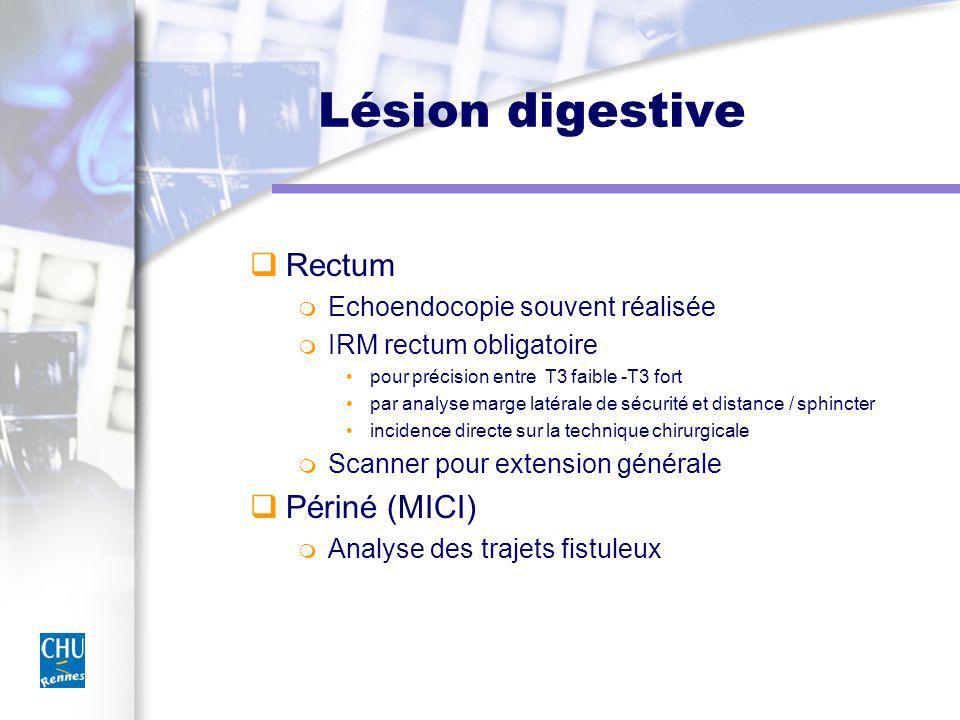Lésion digestive Rectum Périné (MICI) Echoendocopie souvent réalisée
