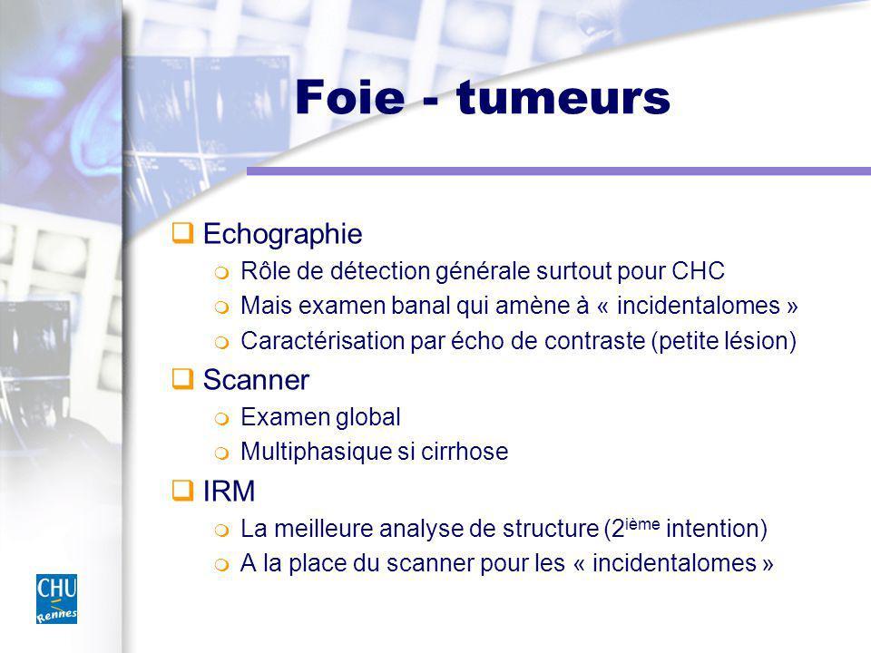 Foie - tumeurs Echographie Scanner IRM