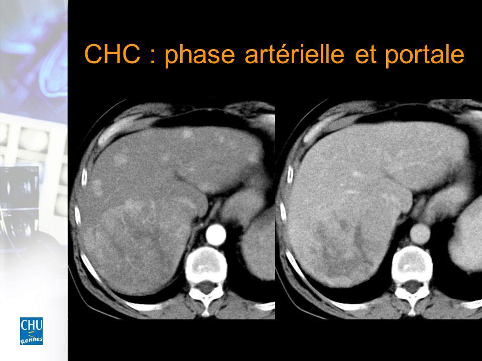 CHC : phase artérielle et portale
