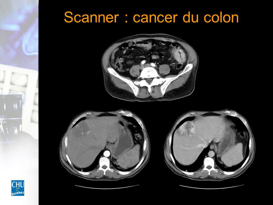 Scanner : cancer du colon