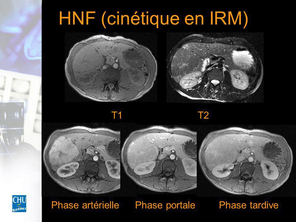 HNF (cinétique en IRM) T1 T2 Phase artérielle Phase portale