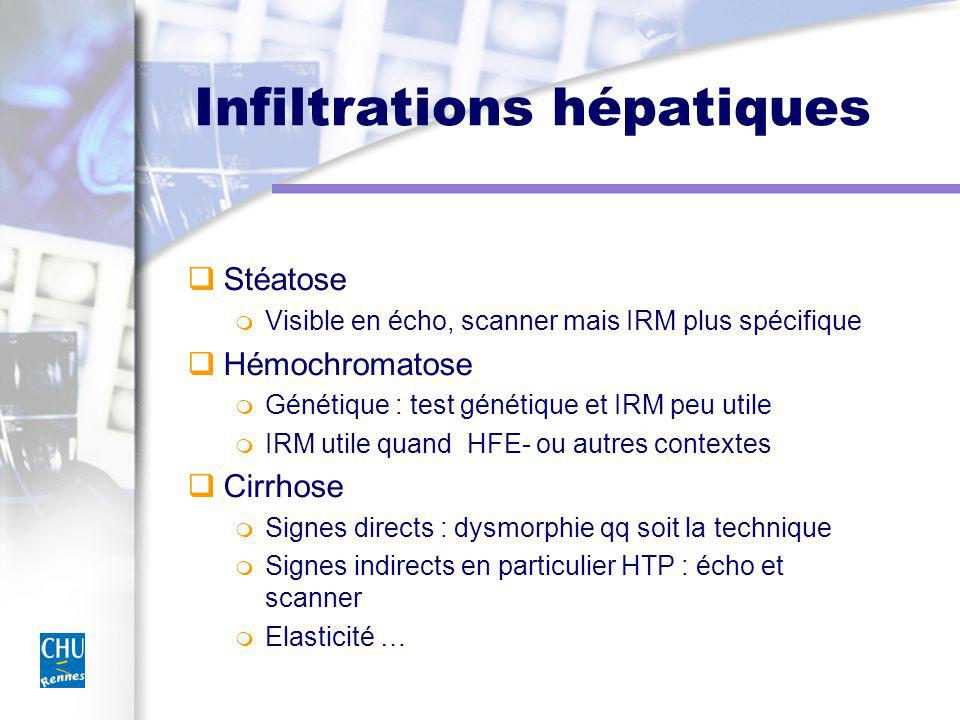 Infiltrations hépatiques