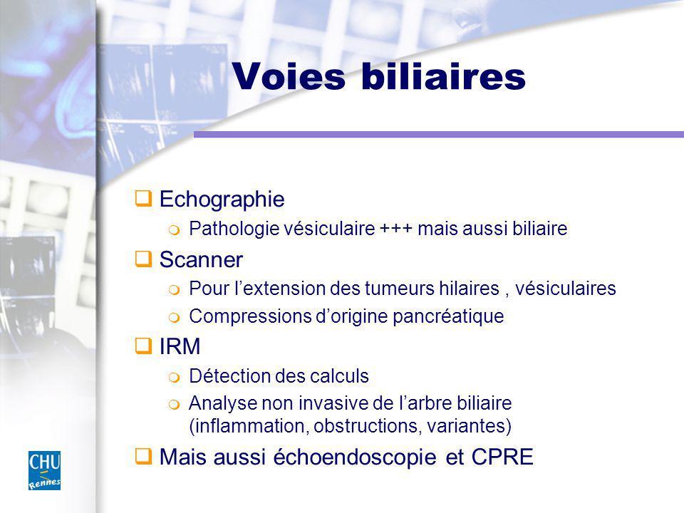 Voies biliaires Echographie Scanner IRM