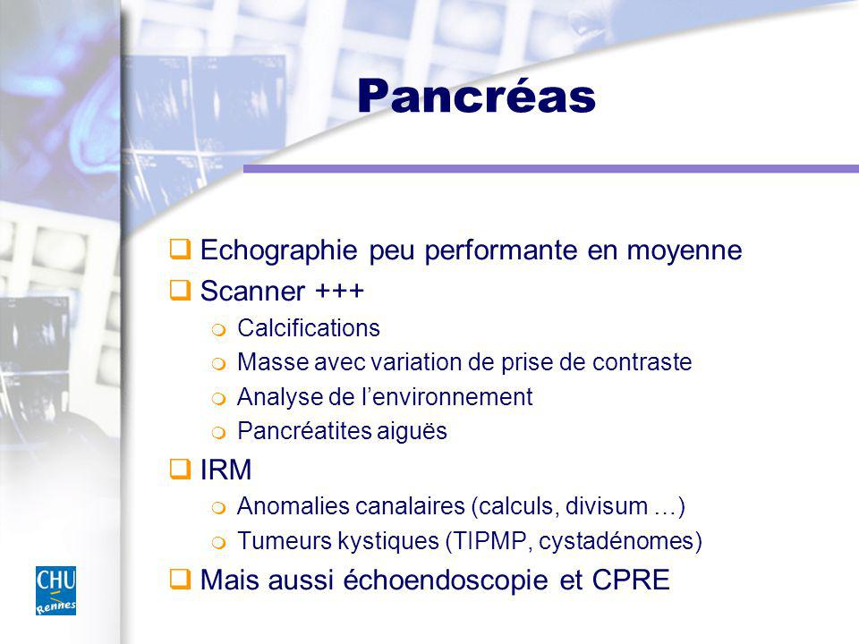 Pancréas Echographie peu performante en moyenne Scanner +++ IRM