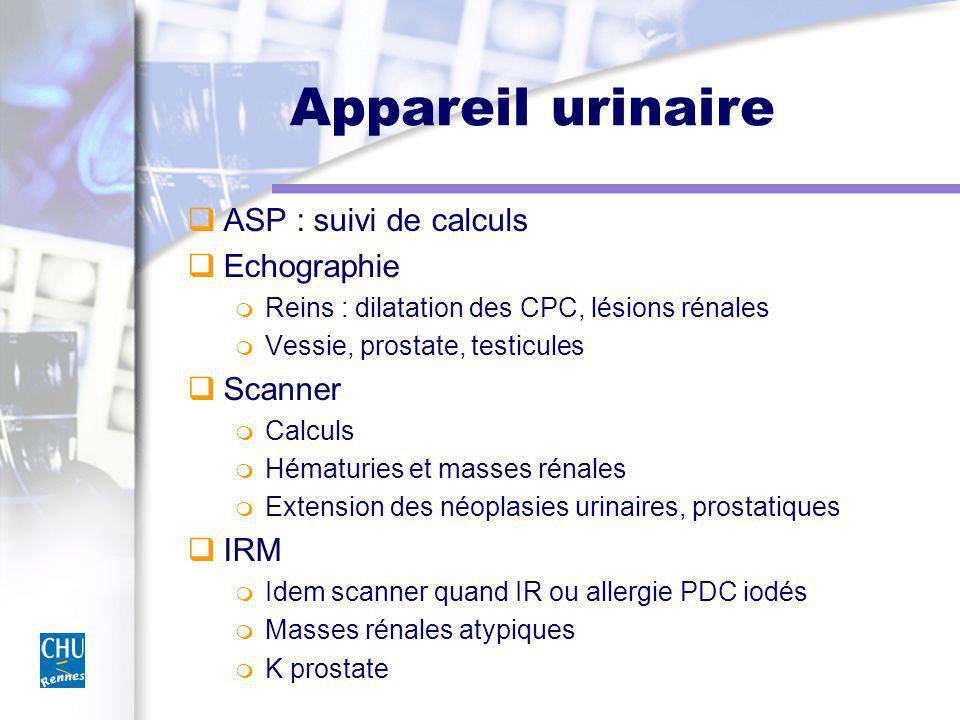 Appareil urinaire ASP : suivi de calculs Echographie Scanner IRM