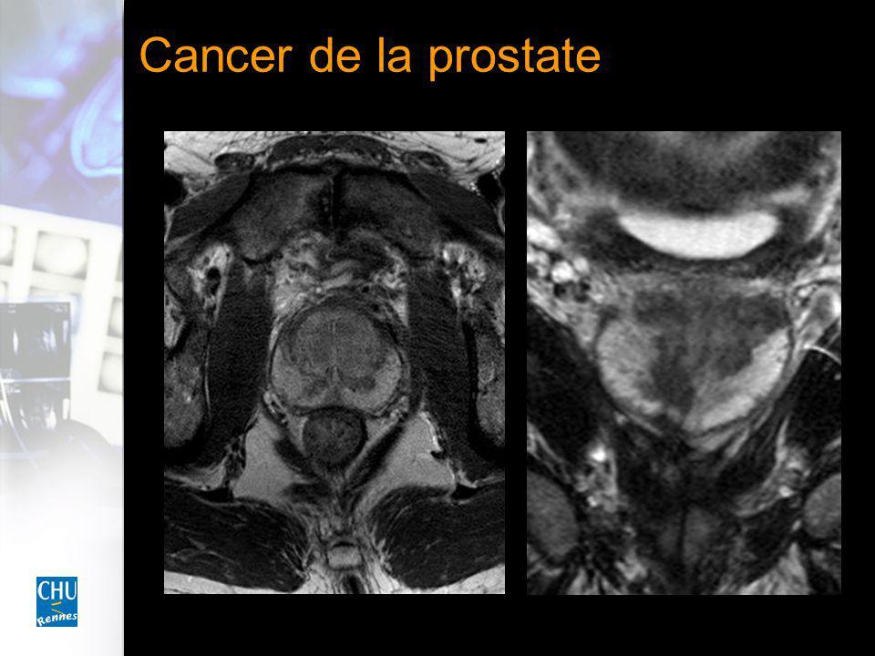 Cancer de la prostate Phase artérielle Phase tardive