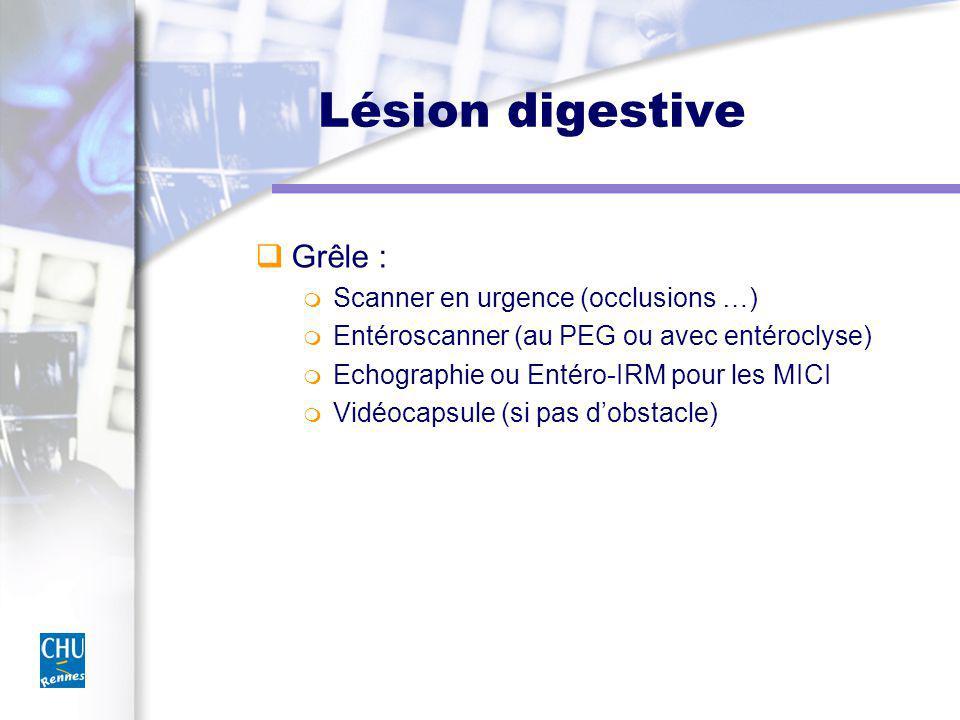 Lésion digestive Grêle : Scanner en urgence (occlusions …)