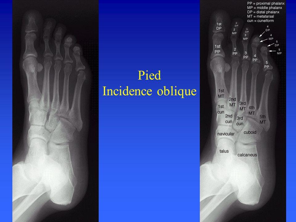 Pied Incidence oblique