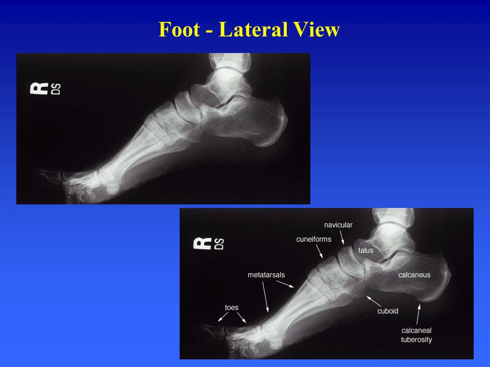 Foot - Lateral View