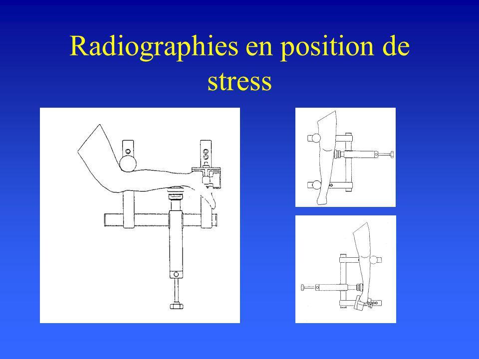 Radiographies en position de stress