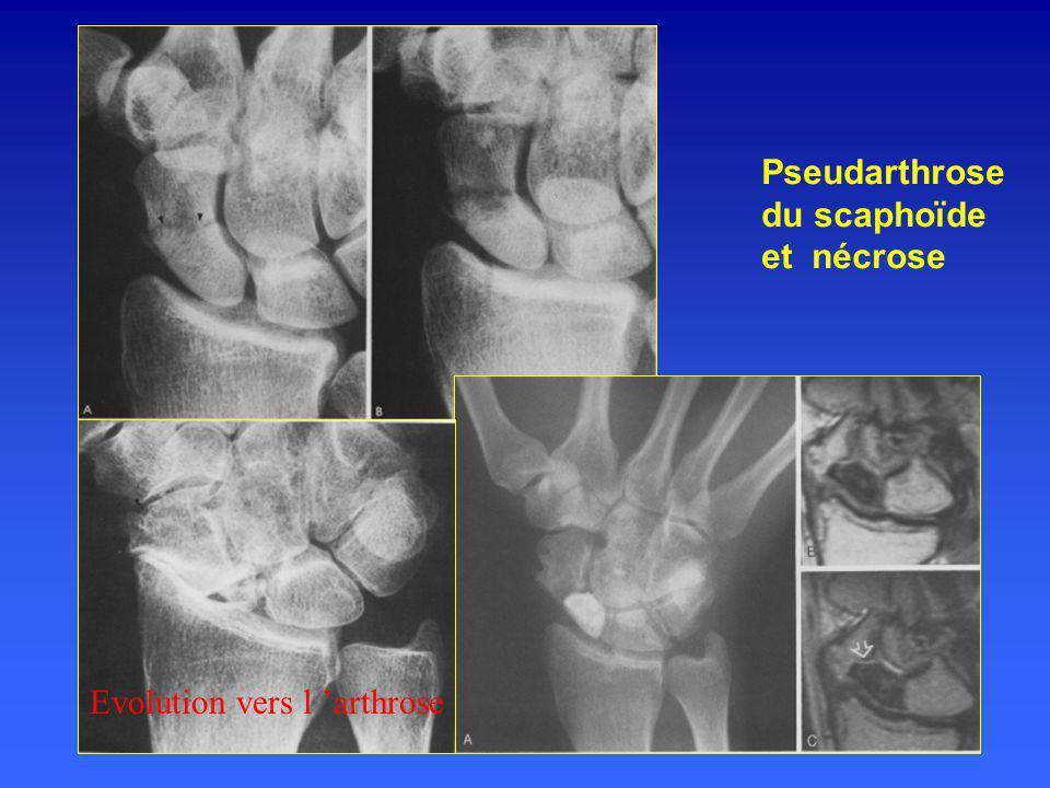 Pseudarthrose du scaphoïde et nécrose Evolution vers l 'arthrose