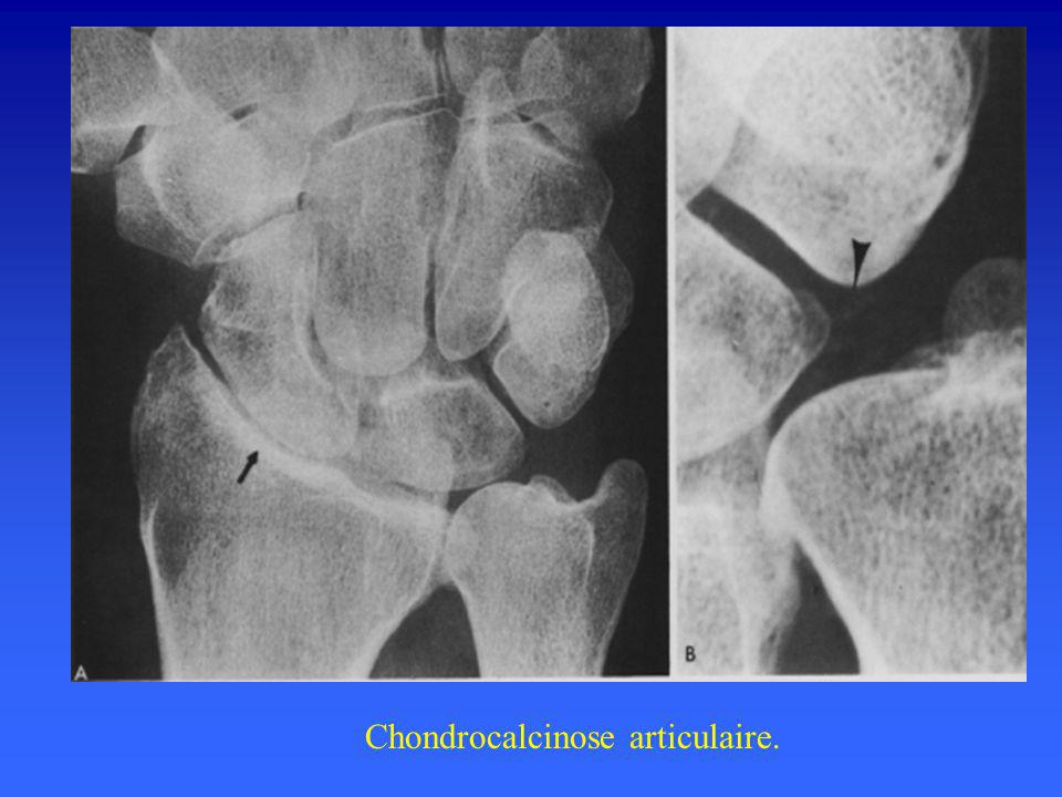 Chondrocalcinose articulaire.