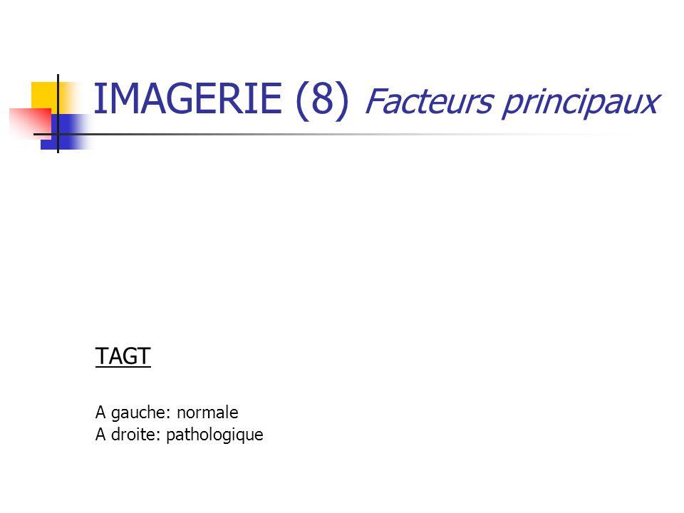 IMAGERIE (8) Facteurs principaux